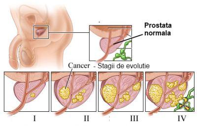 se vindeca cancerul de prostata)